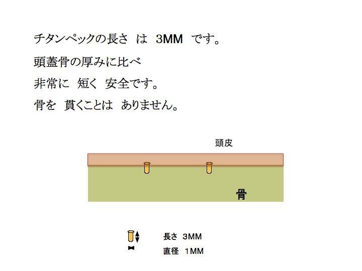 骨厚み のコピー.jpg