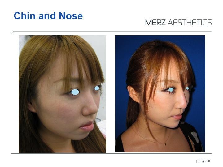 RAD nose & chin.jpg