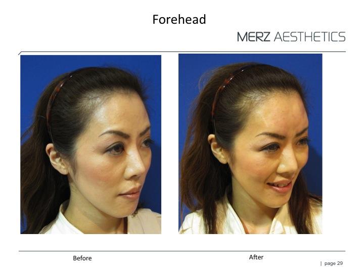 RAD forehead 2.jpg