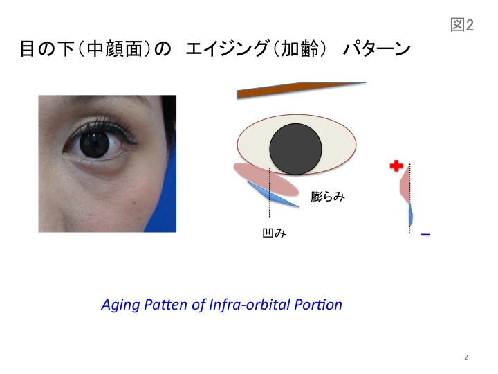 目の凹みスライド02.jpg