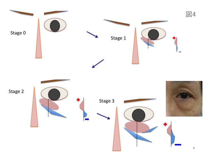 目の凹みスライド04.jpg