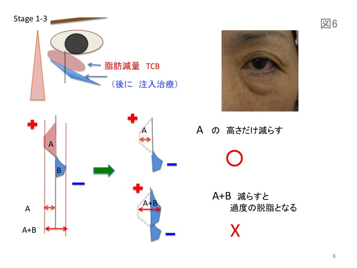 目の凹みスライド06.jpg