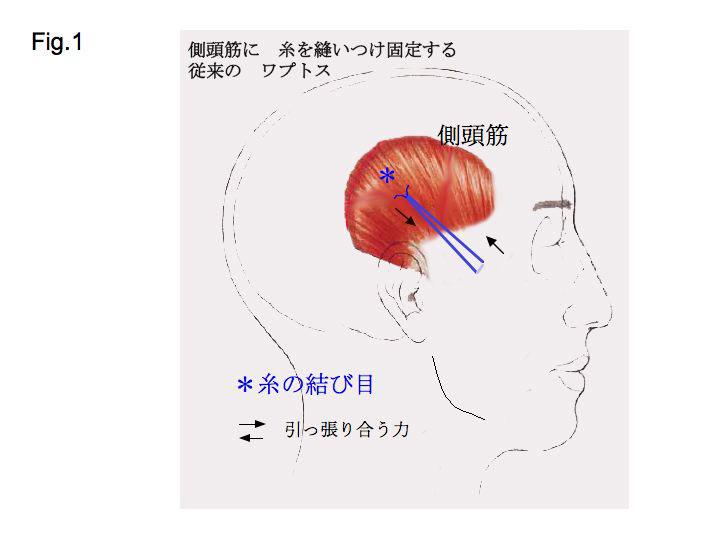筋肉スライド1.jpg