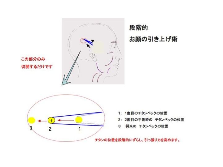 TPL シェーマスライド3.jpg