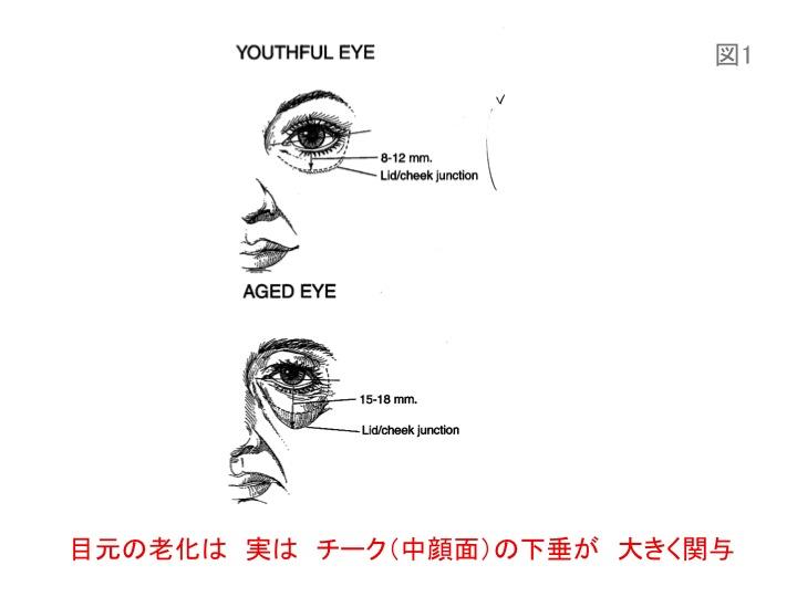 目の凹みスライド01.jpg