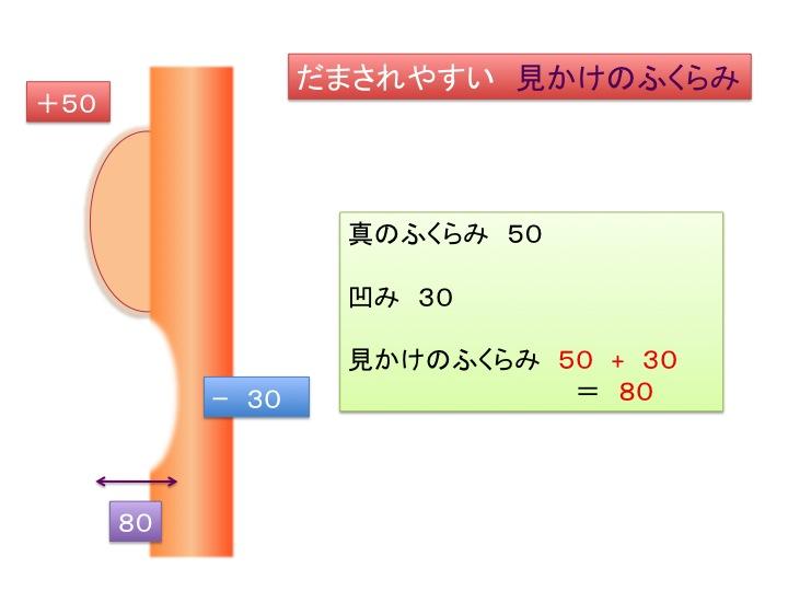 目の下治療シェーマ2.jpg