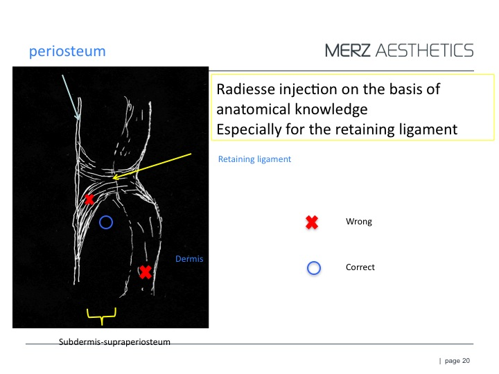 RAD Ligament *.jpg