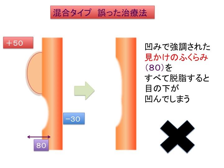 目の下治療シェーマ4.jpg